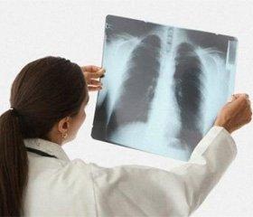Особливості перебігу нетяжкої негоспітальної пневмонії у осіб із супутньою хронічною серцевою недостатністю