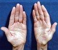 Основные клинические формы полинейропатий:  диагностика, подходы к лечению