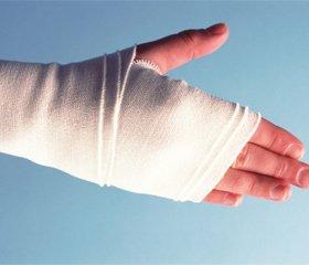 Наш опыт лечения чрезмыщелковых переломов плечевой кости у детей