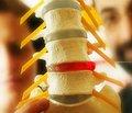 Реконсруктивно-відновне лікування вертеброгенної компресії хребцевої артерії у хворих з рефлекторним нейродистрофічним синдромом адгезивного капсуліту плечового суглоба