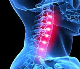 Передняя декомпрессия при стенозе позвоночного канала в шейном отделе позвоночника