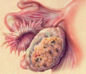 Дополнительные возможности ультразвукового исследования при раке яичников