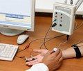 Параметры мигательного рефлекса в периодах моторных флюктуаций при болезни Паркинсона
