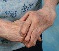 Остеопороз и ревматоидный артрит— необходимость комплексного терапевтического подхода