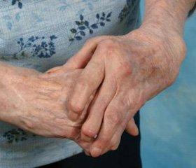 тоже читал ревматоидный артрит остеопороз то, что вмешиваюсь…