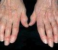 Ефективність лікування та можливі несприятливі наслідки терапії остеоартроза міжфалангових суглобів кистей