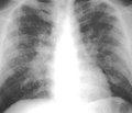 Видеоассистированные торакальные операции в диагностике и лечении внутригрудной патологии