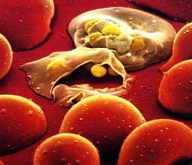 Комбинированная антибиотикотерапия хирургического сепсиса