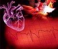 Перебіг інфаркту міокарда на фоні супутньої артеріальної гіпертензії у жителів Закарпаття з інтактними вінцевими артеріями