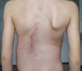 A Comparison of Two Types of Postoperative Pain Control After Scoliosis Surgery