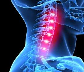 Хирургическая декомпрессия привертеброгенных миелопатиях в шейном отделе позвоночника
