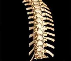 Переломо-вывихи в шейном и грудном отделах позвоночника. Факторы риска неврологических осложнений