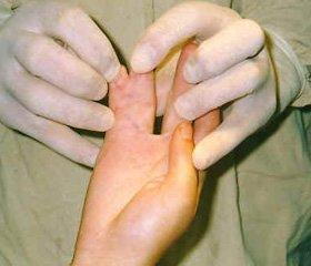Особенности и основные принципы хирургического лечения врожденных синдактилий пальцев кисти