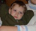 Эпилептический синдром у детей с туберозным склерозом