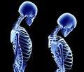 Фактическое потребление и обеспеченность витаминами и кальцием при остеопорозе и остеопении