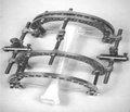 Использование стержневых аппаратов внешней фиксации Костюка как этап комплексного лечения больных с метастатическим поражением костей конечностей