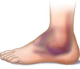 Сравнительные результаты лечения оскольчатых переломов ключицы