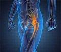 Реабілітація хворих на анкілозивний спондиліт після ендопротезування кульшового суглоба