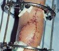 Використання вільної та невільної пересадки m. Latissimus dorsi хворим з ішемічною контрактурою фолькмана верхньої кінцівки тяжкого ступеня