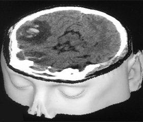 Возрастные аспекты  хронических субдуральных гематом