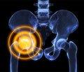 Частота тромбозів глибоких вен нижніх кінцівок після тотального ендопротезування кульшових суглобів при застосуванні низькомолекулярних гепаринів