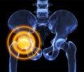 Особенности эндопротезирования при застарелых переломо-вывихах тазобедренного сустава