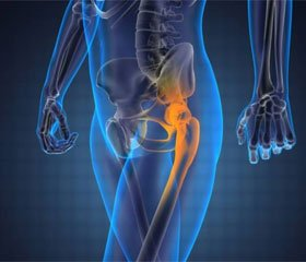 Остеосинтез вертлужной впадины в системе этапного лечения пострадавших с переломо-вывихами в области тазобедренного сустава