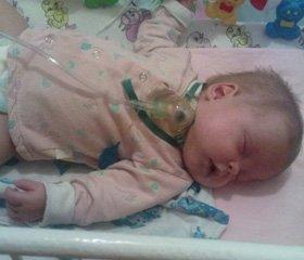 Особливості фізичного розвитку дітей з бронхолегеневою дисплазією