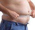 Лабораторні маркери прогнозування іммобілізаційного остеопорозу при переломах проксимального відділу стегна у хворих зожирінням