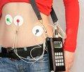Нарушения моторики желудочно-кишечного тракта как важнейший аспект функциональных заболеваний