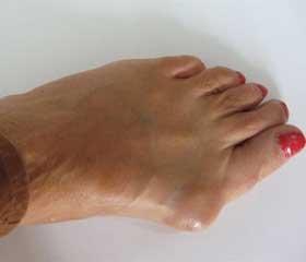 Реконструктивно-восстановительные оперативные вмешательства при вальгусной деформации i пальца с поперечной распластанностью стопы