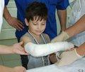 Лікування посттравматичних порушень репаративної регенерації переломів кісток у дітей