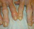 Профілактика та лікування посттравматичного остеоартрозу у хворих звнутрішньосуглобовими остеохондральними переломами