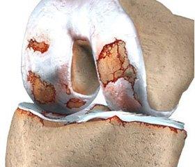 Изучение возможных причин возникновения переломов у больных с ревматоидным артритом (по данным анамнеза)