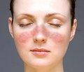 Лечение люпус-нефрита