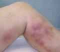 Оцінка показників гемостазу у хворих на гострий варикотромбофлебіт нижніх кінцівок до і після флебосклерозуючої терапії