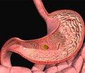 Гастроінтестинальні ускладнення залежно від селективності нестероїдного протизапального препарату