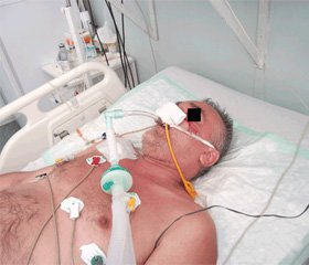 Качество жизни и уровень летальности у пациентов, которым проводили длительную искусственную вентиляцию легких