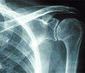 Клиническая диагностика нестабильности плечевого сустава у лиц, перенесших травматический вывих плеча