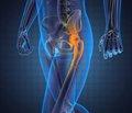 Использование малоинвазивного трансягодичного доступа при лечении переломов задней стенки вертлужной впадины