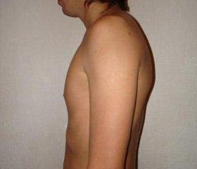 Принципы дифференцированной терапии  мышечно-скелетной боли,  связанной с нарушениями биомеханики позвоночного столба