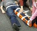 Профилактика и лечение гнойных осложнений открытых переломов длинных костей конечностей с позиции системного воспалительного ответа