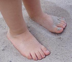 Лечение грибка ногтей хозяйственным мылом с содой