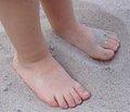 Проблема вросшего ногтя у детей