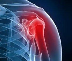 Лечение повреждений акромиально-ключичного сочленения методом наружного чрескостного остеосинтеза