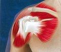 Комплексная оценка результатов лечения повреждений акромиально-ключичного сочленения