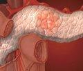 Хирургическое лечение хронического панкреатита с протоковой гипертензией без протоковой дилатации