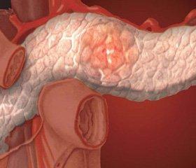 Значение генетически детерминированной патологии в развитии и течении хронических панкреатитов