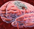 Особливості постінсультних когнітивних порушень  у пацієнтів із метаболічним синдромом