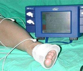 Комплексное лечение нейроишемических язв нижних конечностей у больных сахарным диабетом 2-го типа, осложненных гнойным артритом